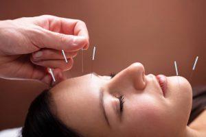 acupuncture adelaide